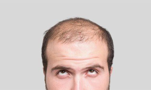 170310-balding-man-mn-1200_057ccbf7d0bd3e0847d726e1b1b06c95.nbcnews-ux-2880-1000