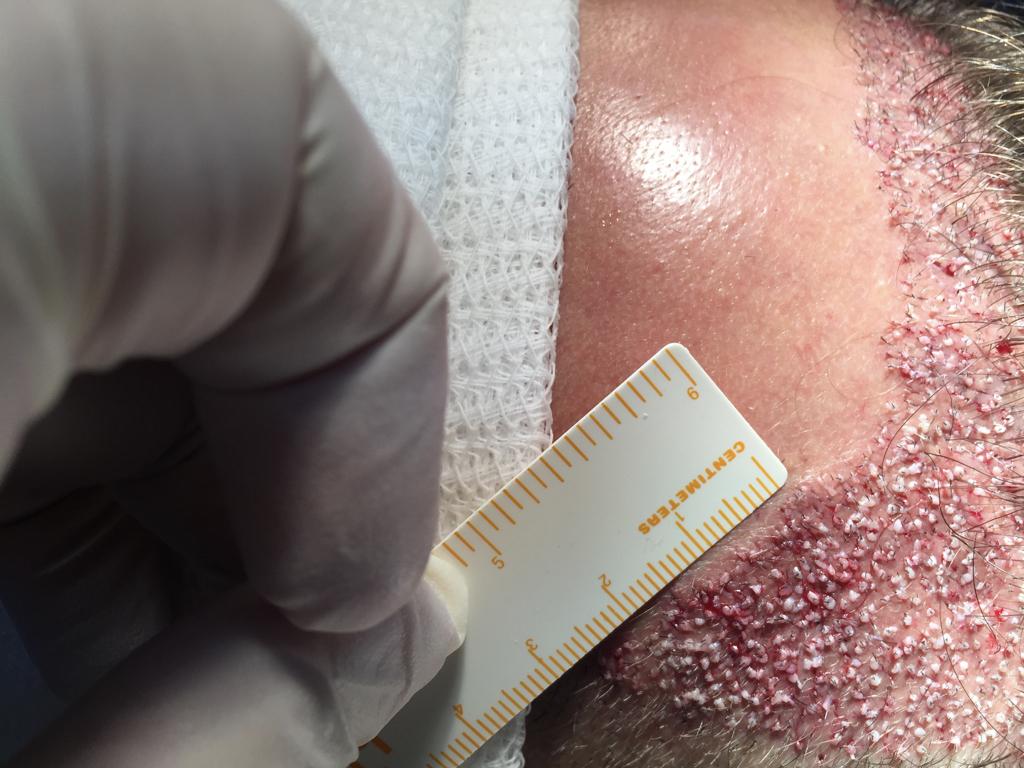 costra después de cirugía capilar